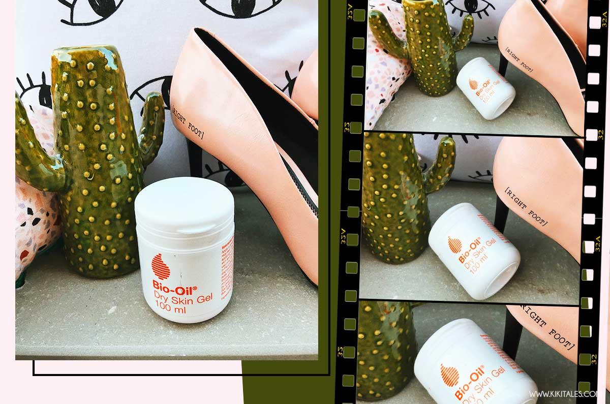 rimedio pelle secca con bio oil gel pelle secca